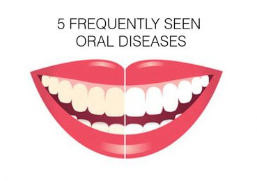 5 Frequently seen Oral Diseases | oral health